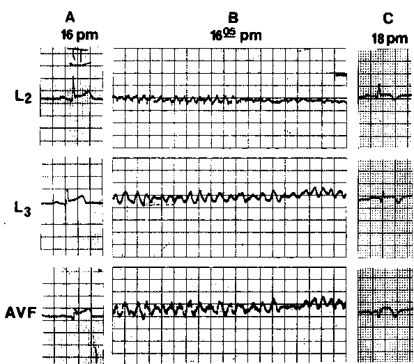 Figure 1. Example of type 1 VF in patient with inferior wall infarction (patient 1; Table 1). A. Electrocardiogram on admission (leads 2, 3, and aVF), demonstrating stage 1 of inferior wall infarction with minimal Q waves (