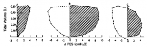 Figure 7. Plot of change in Pes and pulmonary volume for subject 3 during spontaneous breathing (rate = 25/min; Vt = 0.5 L). Data points represent measurements made at 0.1-s intervals during subjects breath. Solid lines and broken lines trace periods of inspiration and expiration, respectively. Hatched area signifies inspiratory work. Plots are shown for representative respiratory cycles while breathing through mouthpiece (A), through 7-mm endotracheal tube and ventilator circuit without pressure support (B), and through 7-mm endotracheal tube and ventilator circuit with level of pressure support (6 cm H20) sufficient to result in Wi/L equivalent to that during mouthpiece breathing (C). Inspiration is denoted by positive changes in Pes.