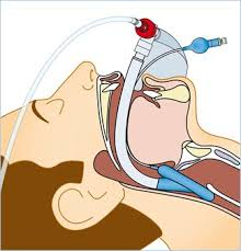 Oxygen Cost of Breathing in Postoperative Patients
