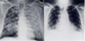 Figure 1. Admission AP chest roentgenogram (left) taken of the first patient compared with PA film (right) taken 38 days after admission. Residual interstitial infiltrates remained prominent after 38 days.
